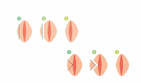 عمل زیبایی واژن زنان , واژینوپلاستی و لابیاپلاستی