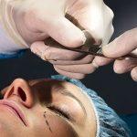جراحی پلاستیک بینی چه عوارضی به دنبال دارد؟