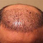 همه چیز درباره کاشت مو در مردان و زنان