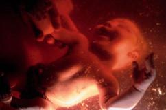 کدام جنینها با مجوز سقط میشوند؟