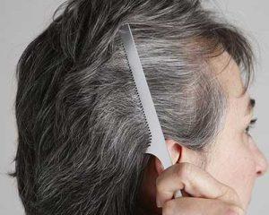 روش های طبیعی مبارزه با موهای سفید
