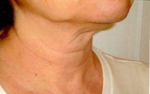دلایل شل شدن و افتادگی پوست گردن و راه پیشگیری