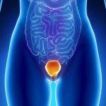 علت بروز عفونت ادراری،پیشگیری و درمان