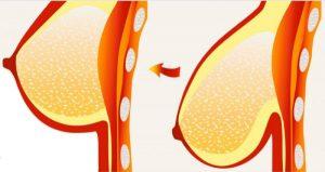 راه های جلوگیری از افتادگی سینه