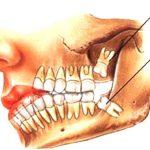 آنچه درباره دندان «عقل» باید بدانیم