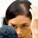 درمان و توقف ریزش مو با مواد طبیعی