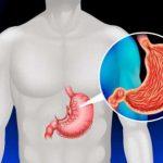 عواملی که باعث افزایش خطر سرطان معده می شود