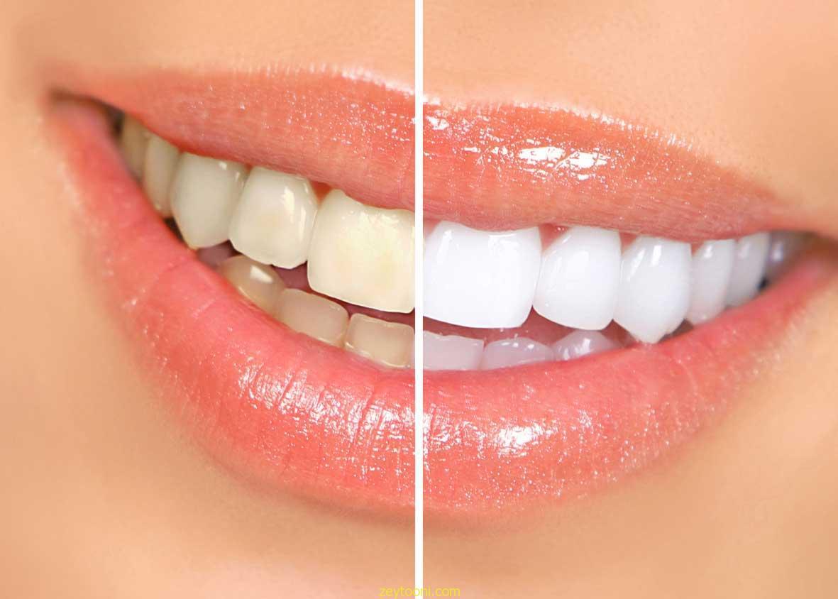 زردی دندان , از بین بردن زردی دندان به روش طبیعی