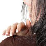 بهترین روغن های گیاهی برای درمان شوره سر
