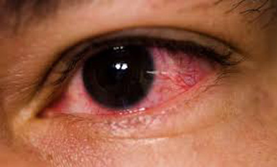 دلایل قرمزی چشم ها
