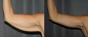 سفت کردن پوست پس از کاهش وزن