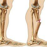 ۶ تصویر غلط درباره پوکی استخوان