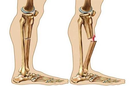 6 تصویر غلط درباره پوکی استخوان