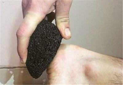 درمان سردرد با سنگ پا