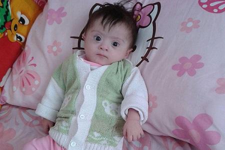 فاطمه زهرای ۸ ماهه ، کودک نشانگان داون