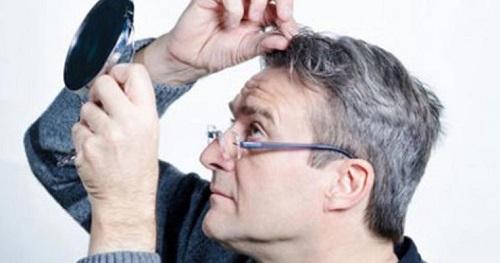 باورهای نادرست درباره سفید شدن مو