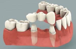 بریج یا روکش پل دندانی