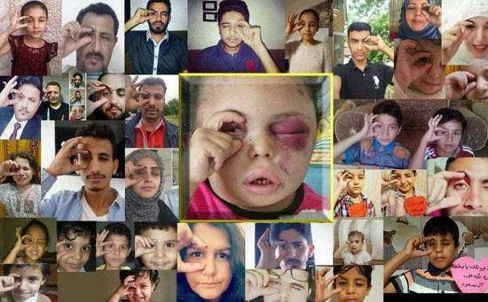 واکنش کاربران به چهره کودک یمنی که همه خانواده اش را از دست داد!+عکس