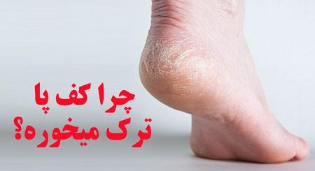 دلیل ایجاد ترک پا چیست؟ + درمان خانگی ترک کف پا
