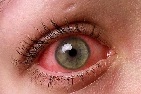 قرمز شدن چشم , دلایل قرمز شدن چشم ها