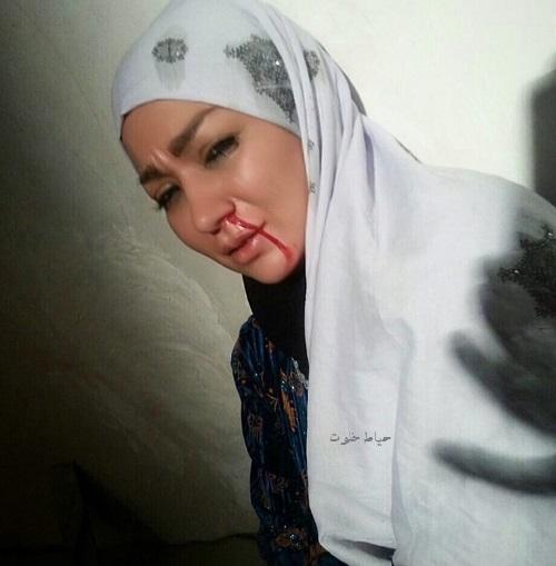 شقایق دلشاد در فیلم دختر افغان, شقایق دلشاد