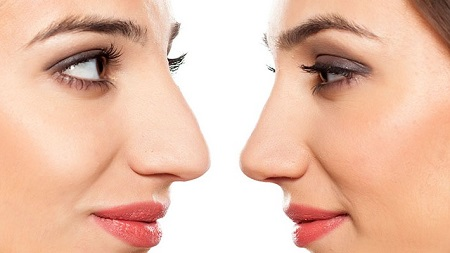 کوچک کردن بینی - بینی خود را بدون جراحی کوچک کنید!