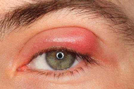 همه چیز درباره گل مژه چشم و درمان آن