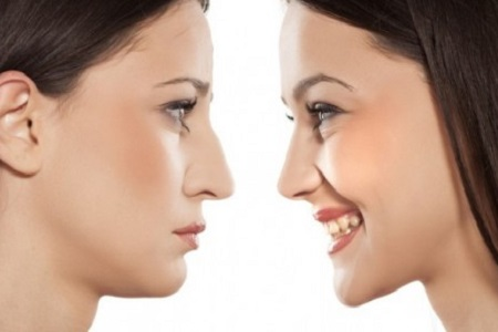 جراحی زیبایی بینی/ نقاط مثبت و منفی و عوارض آن