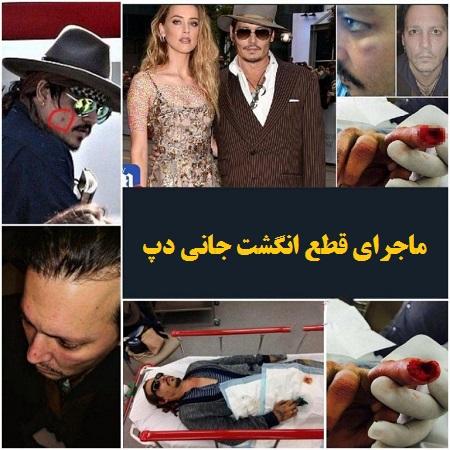 ماجرای قطع انگشت جانی دپ توسط همسر سابقش امبر هرد!+ عکس و جزئیات کتک کاری |